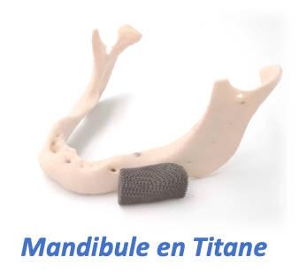 Mandibule en titane